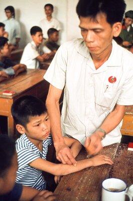 Children Receiving Acupuncture Treatment at School